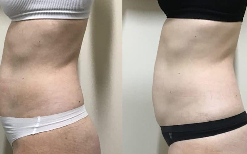 Good Vibrations or Just Hype? My Emsculpt Experience