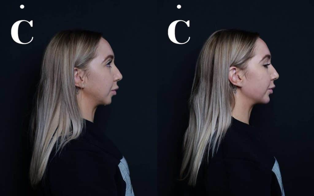 Chin & Jawline dermal fillers before and after