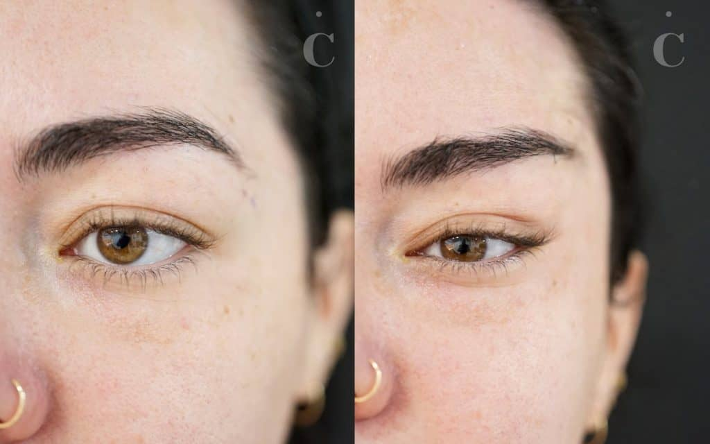 Fox eye before and after
