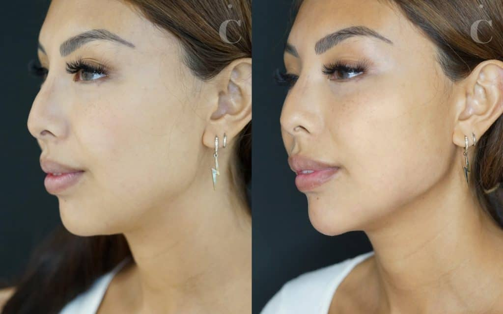 Jawline filler before and after
