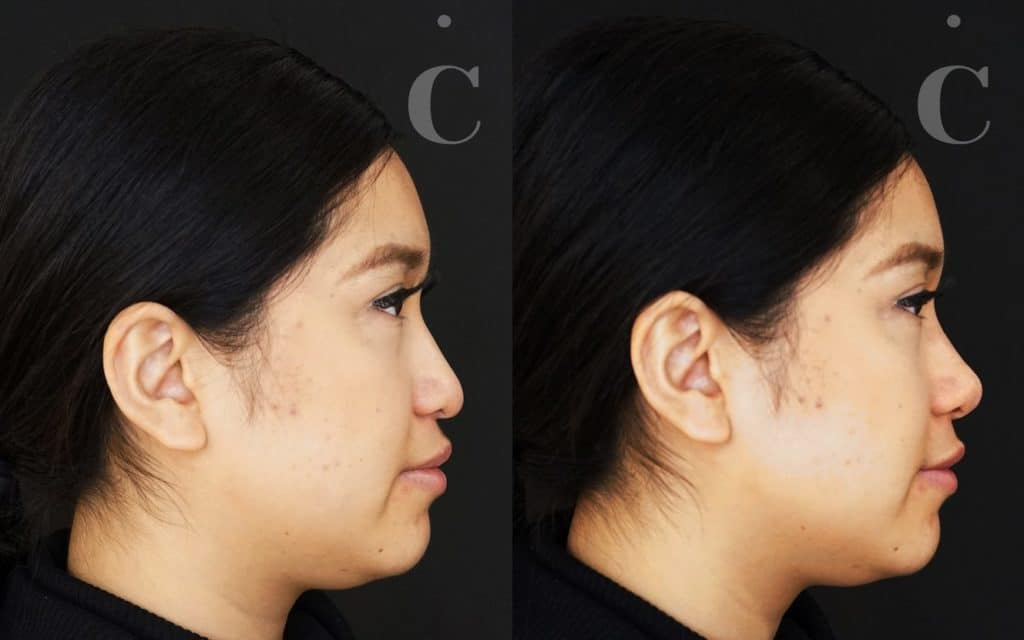 Nose filler before and after