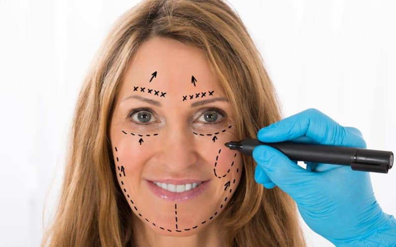 Thread Lift Vs Facelift – Which is Better for You?